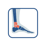 Foot and ankle pain icon