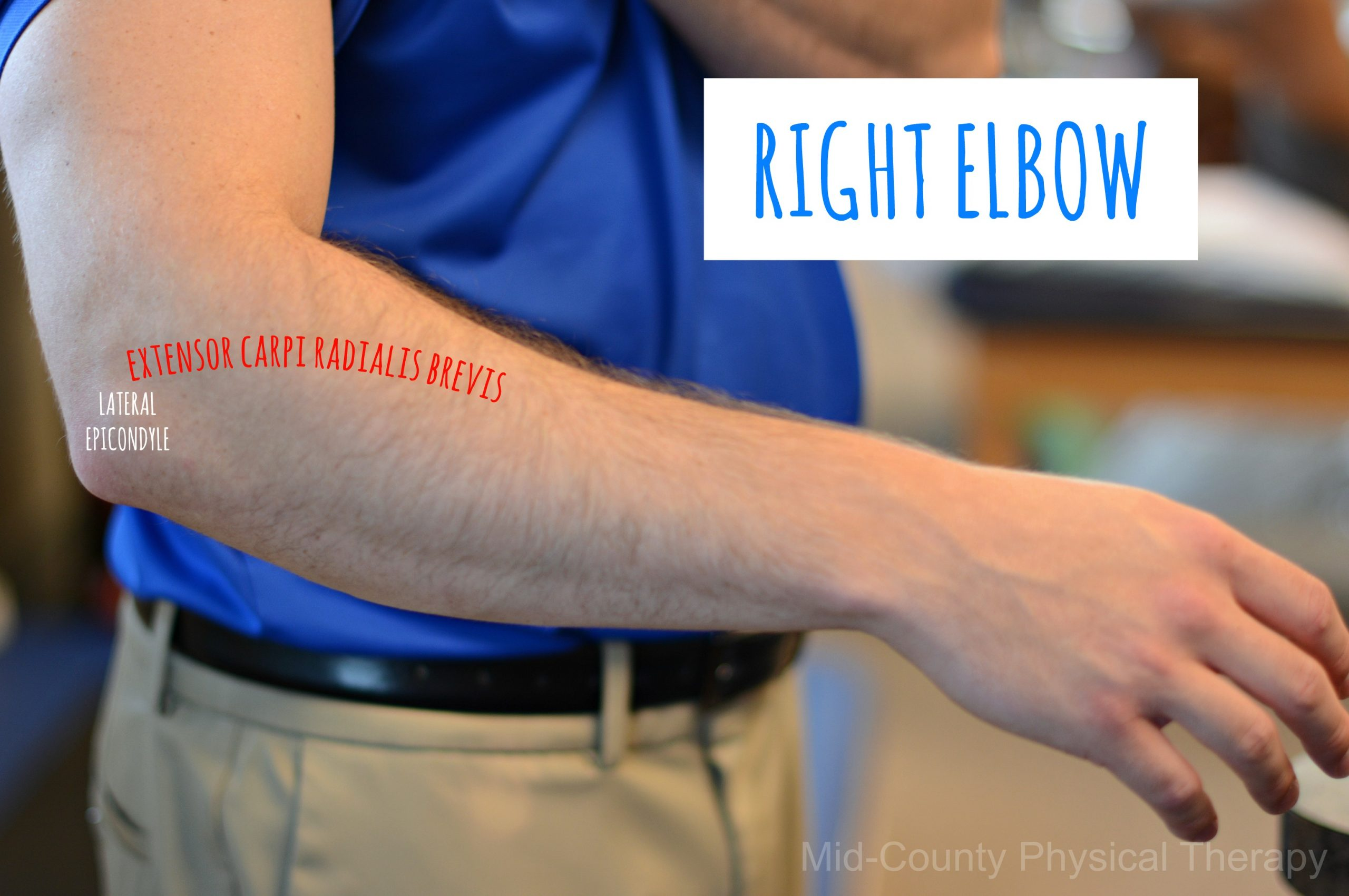 right elbow